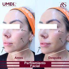 Perfiloplastia - Unidad de Medicina Estética de Querétaro