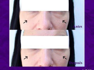 Tratamientos faciales-699059