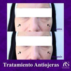 Eliminación de ojeras - Unidad de Medicina Estética de Querétaro