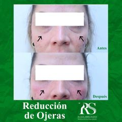 Reducción de ojeras - Unidad de Medicina Estética de Querétaro