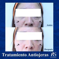 Tratamiento antiojeras - Unidad de Medicina Estética de Querétaro