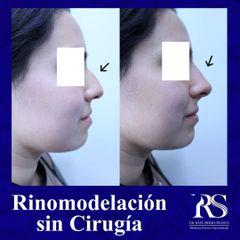 Rinomodelación - Unidad de Medicina Estética de Querétaro