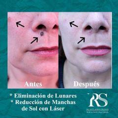 Eliminación lunares - Unidad de Medicina Estética de Querétaro