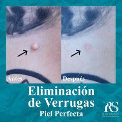 Eliminación de verruga - Unidad de Medicina Estética de Querétaro