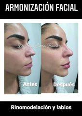 Armonización facial - Unidad de Medicina Estética de Querétaro