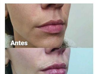 Aumento de labios-740667