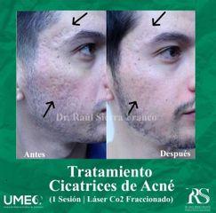 Tratamiento acné laser CO2 Fraccionado - Unidad de Medicina Estética de Querétaro