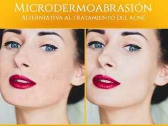 Microdermoabrasión - 640031