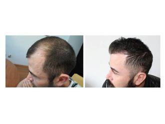 Trasplante de cabello - 626761