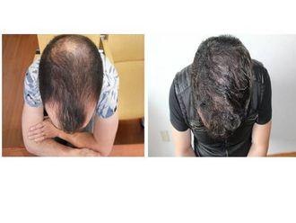 Trasplante de cabello - 626762