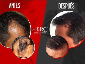 Trasplante de cabello - 630600