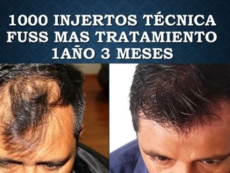 Trasplante de cabello - 630638