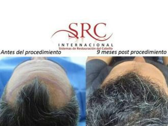 Trasplante de cabello - 631012