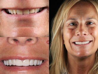Estética dental-663030