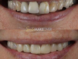 Ortodoncia-663031
