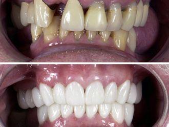 Implantes Dentales-663582
