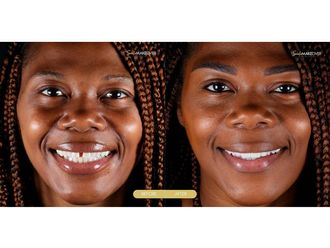 Estética dental-663583