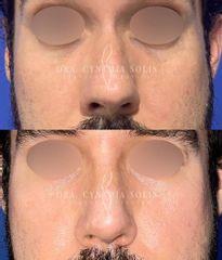 Rinoplastia masculina - Dra. Cynthia Solis