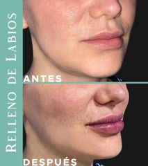Aumento de labios - Dra. Cynthia Solis