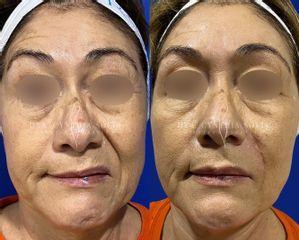 Cirugía facial - Dra. Cynthia Solis