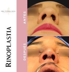 Rinoplastia - Dra. Cynthia Solis