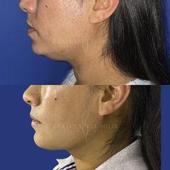 Liposucción de cuello e implante de menton - Dra. Cynthia Solis