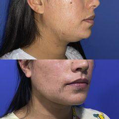 Liposucción de cuello e implante de mentón - Dra. Cynthia Solis