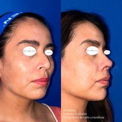 Rinoplastia, perfilamiento de cuello, aumento de mentón - Dra. Cynthia Solis