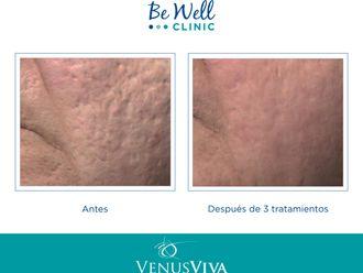 Tratamiento antiacné-661293