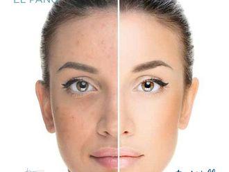 Tratamientos faciales-699311