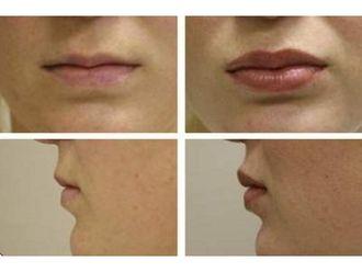 Aumento de labios-306598