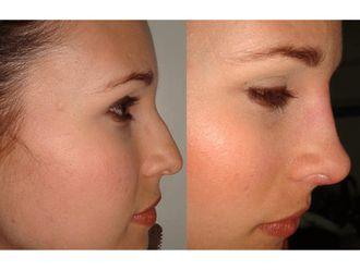 Rejuvenecimiento facial-492649