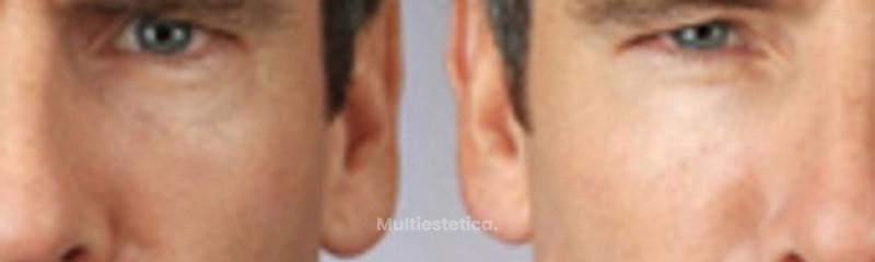 Botox en hombres