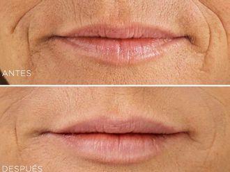 Tratamientos faciales-549390
