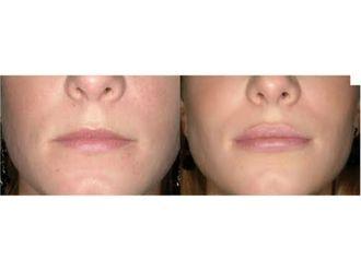 Aumento de labios-549983