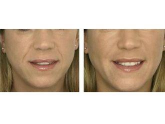 Tratamientos faciales - 549985