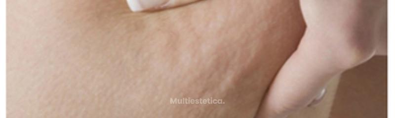 Tratamientos anticelulitis