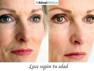 Rejuvenecimiento facial-552744