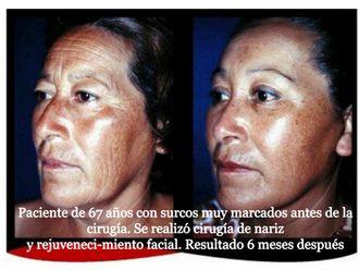 Rejuvenecimiento facial-616742