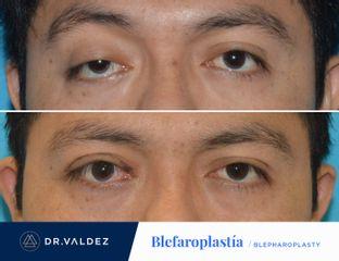 Dr. Arturo Valdez - Reconstrucción de parado superior (Ptosis Palpebral)