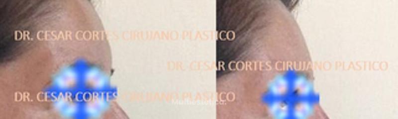 Rinomodelación, manejo de nariz con y sin cirugía