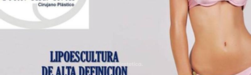 LIPOESCULTURA 3D Y ALTA DEFINICIÓN