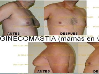 Reducción de mamas-633395