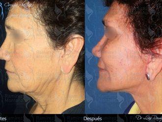 Cirugía de papada-458840
