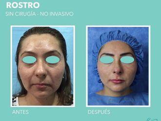 Rejuvenecimiento facial-713634