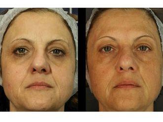 Tratamientos faciales-498371