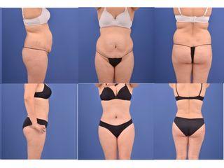 Abdominoplastia + Lipoescultura completa