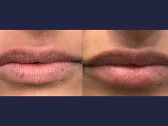 Aumento de labios-613500