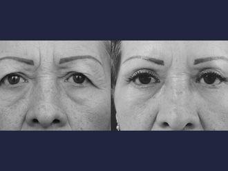 Blefaroplastia-613508