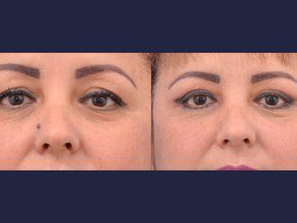 Blefaroplastia-613511